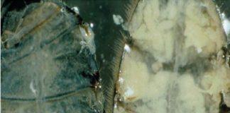 Εικ.2. Λιπόσωμα μελισσών α. φτωχό σε λιποπρωτεΐνη, β. πλούσιο σε λιποπρωτεΐνη