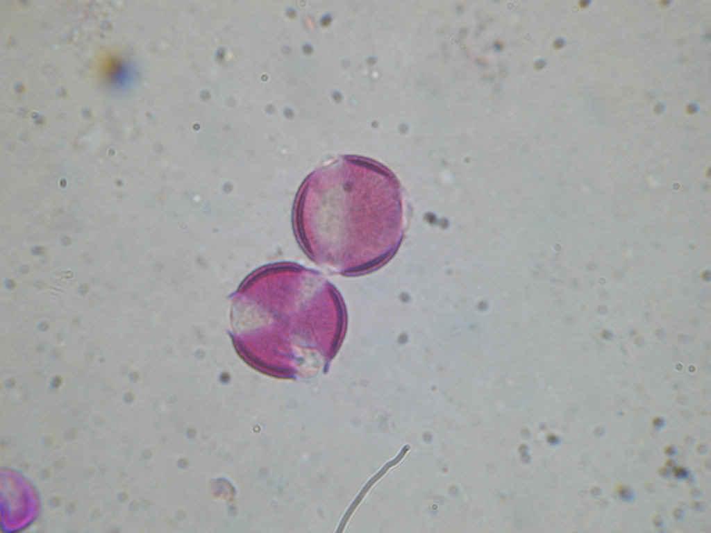 Εικόνα 2: Γυρεόκοκοι ελαιοκράμβης