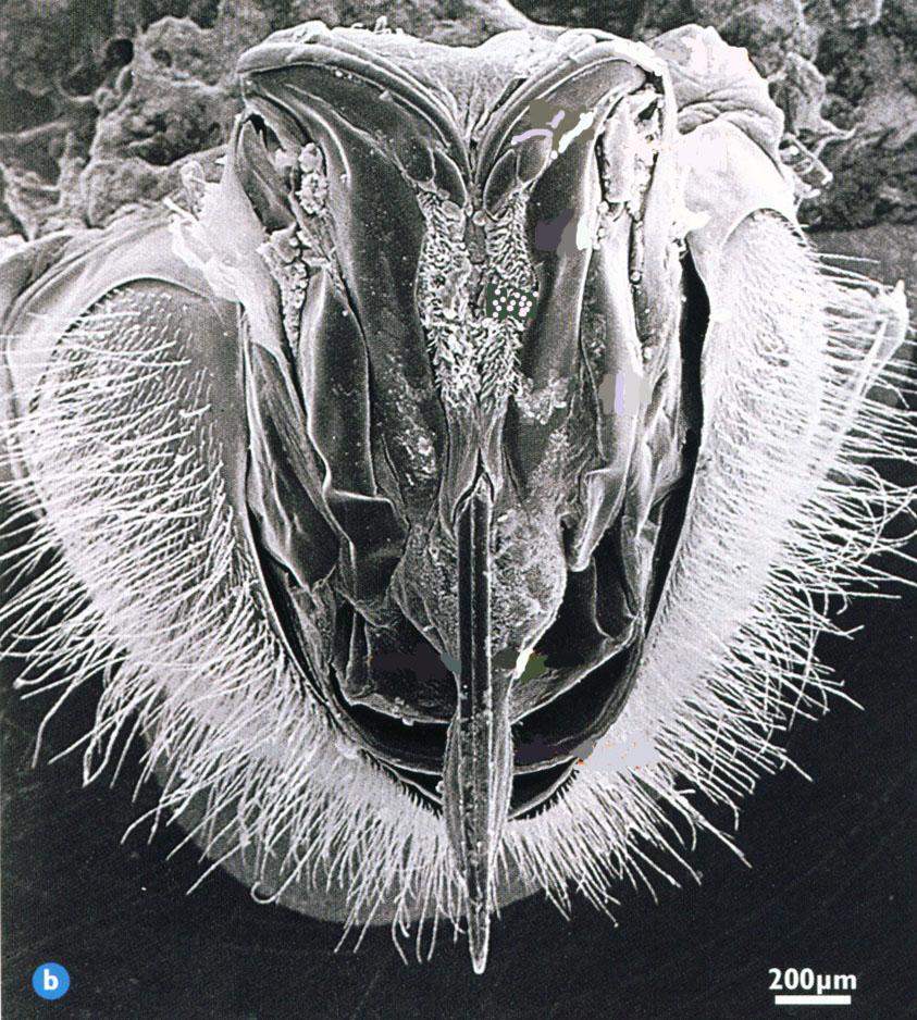 Εικόνα 1: Το κεντρί της μέλισσας