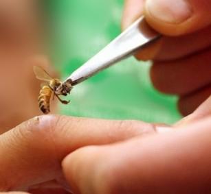Εικόνα 2: Άμεση χρήση του δηλητηρίου της μέλισσας με απευθείας κέντρισμα