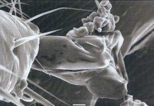 Εικόνα 1 : Φωτογραφία από ηλεκτρονικό μικροσκόπιο του άκρου του ποδιού ενός ακάρεως βαρρόα, στην κατάληξη του οποίου διακρίνονται μικροί κόκκοι άχνης ζάχαρης.