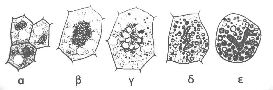 Εικόνα 1. Μεταβολές στα κύτταρα του λιπώδη ιστού που «ωριμάζει» στη διάρκεια ανάπτυξης και μεταμόρφωσης της μέλισσας A. mellifera από προχρυσαλίδα σε χρυσαλίδα (Κατά Seifert 1975) 11. Επεξηγήσεις στο κείμενο.